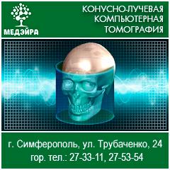 Конусно лучевая компьютерная томография в Симферополе